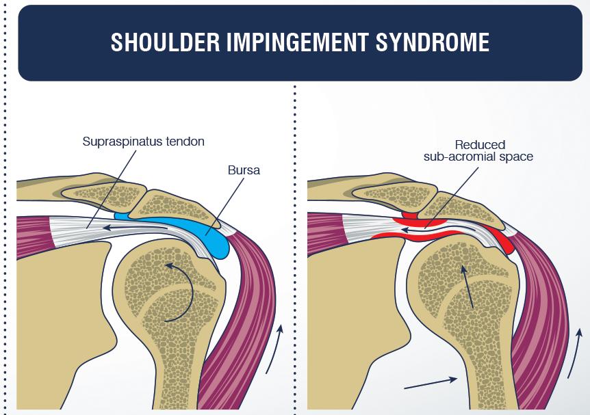 Bolečina v ramenu spredaj, ukleščitev ramena ali subakromialna utesnitev. Simptomi, diagnoza in rehabilitacija.